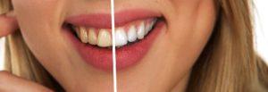 odontología estética blanqueamiento dental carillas de porcelana