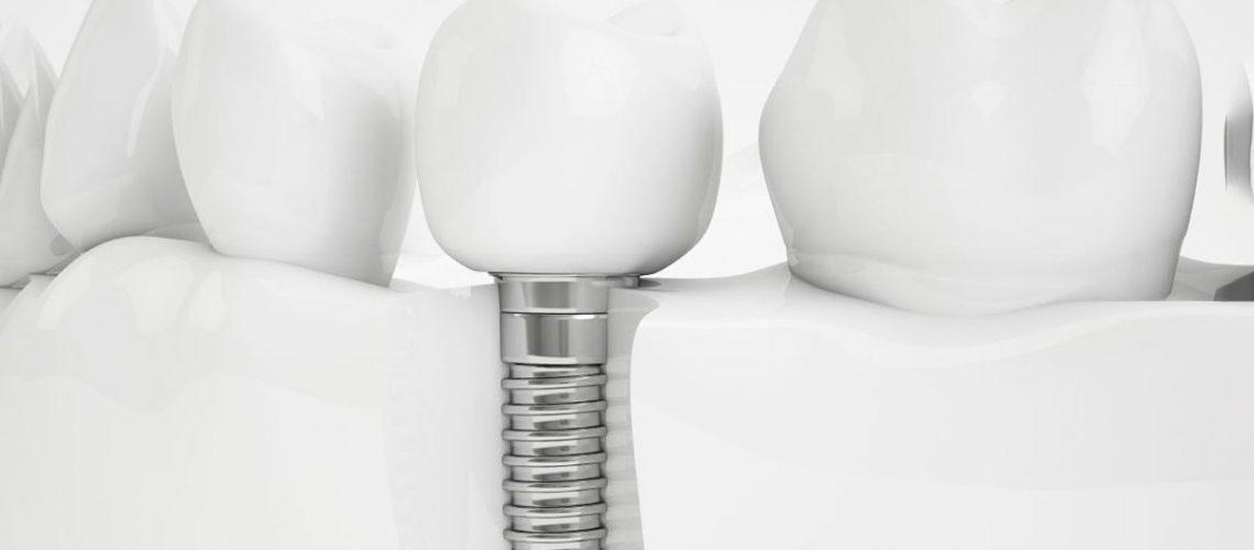 implantologia-avanzada-cada-vez-mas-demandada