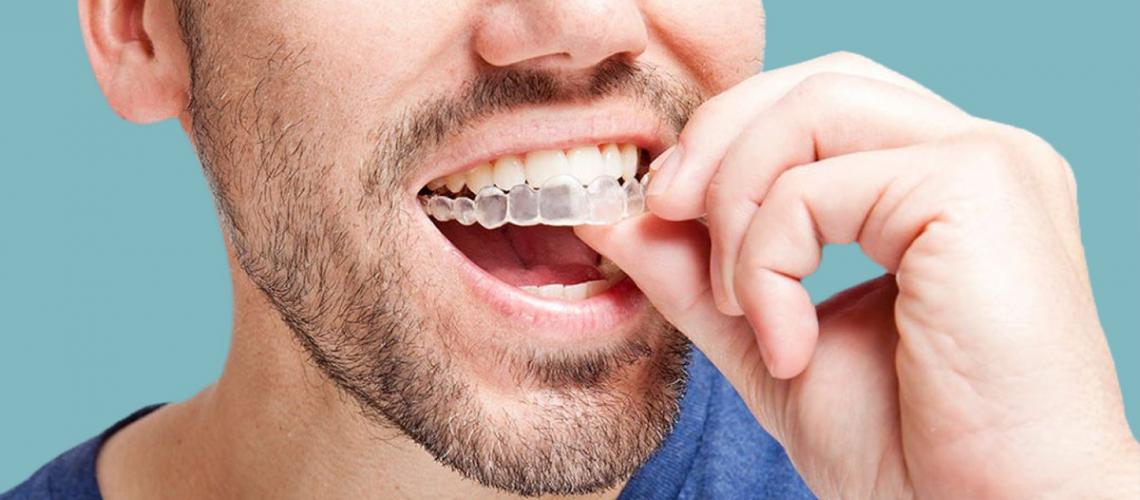 Ortodoncia invisible o Invisalign: ¿Cuáles son sus ventajas e ...