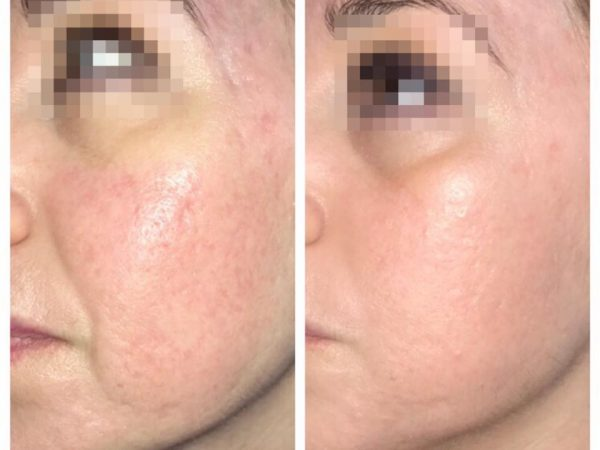 cicatrices atróficas de acné con Viscoderm Hydroboster relleno con ácido hialuronico