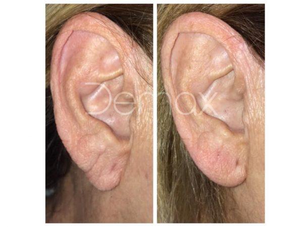Ácido Hialurónico para envejecimiento del lóbulo de la oreja