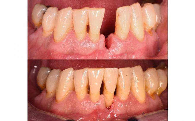 implante-dental-sevilla