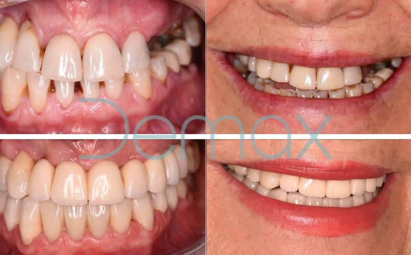 protesis-dental-antes-despues